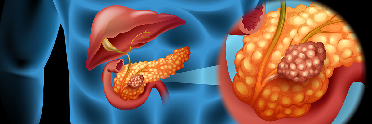هفت گذرگاه ناقل روی، کلیدی برای مبارزه با سرطان پانکراس - دکتر مجازی