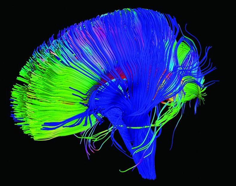 Image credit: NICHD/Flickr مغز تسکین درد مزمن