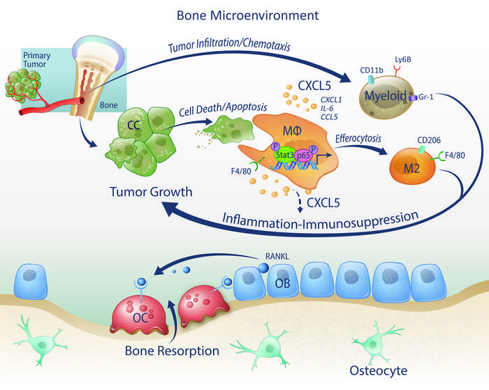 متاستاز سرطان پروستات