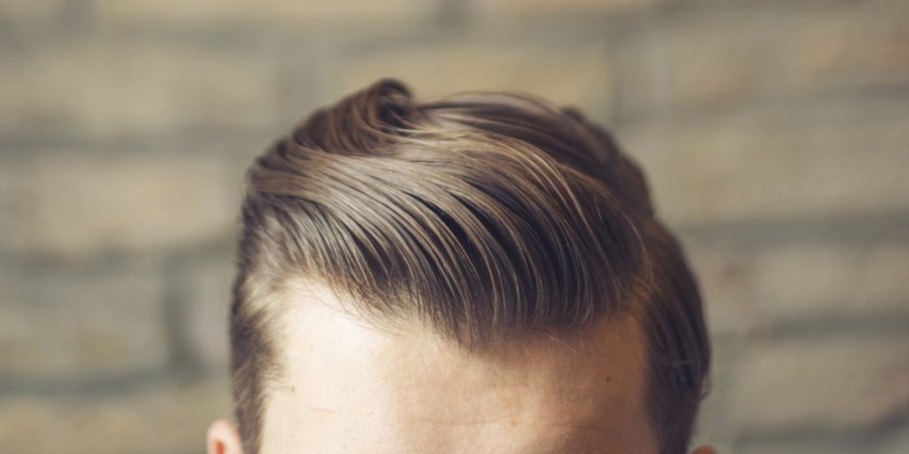 درمان طاسی با الگوی مردانه