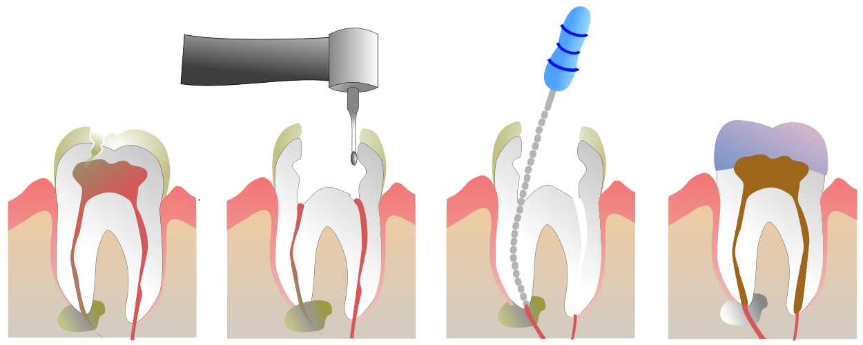 1250px-Root_Canal_Illustration_Molar