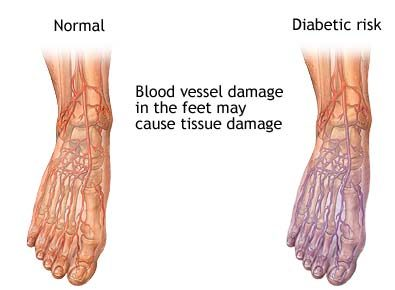 ZZPic diabetic-blood-circulation-in-foot