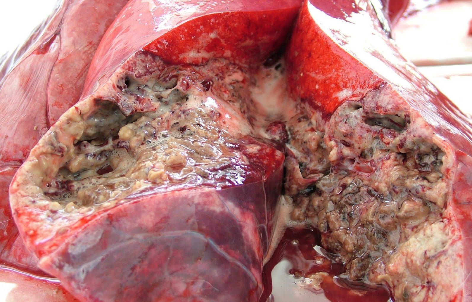 bovine-tb-symptoms-virtualdr.ir