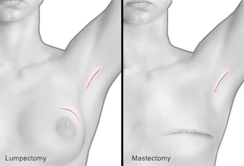 phototake_rm_photo_of_breast_cancer_surgery