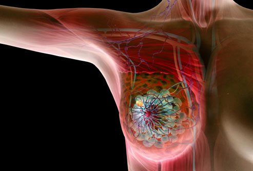 princ_rf_photo_of_breast_cancer_illustration