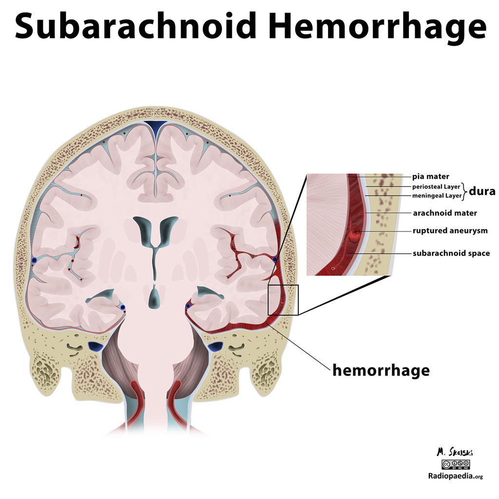 subarchnoid-hemorrhage-VirtualDr.ir