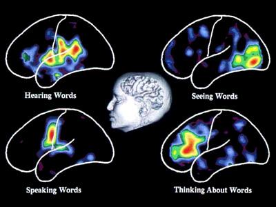 subpage_people_brain_scans_03