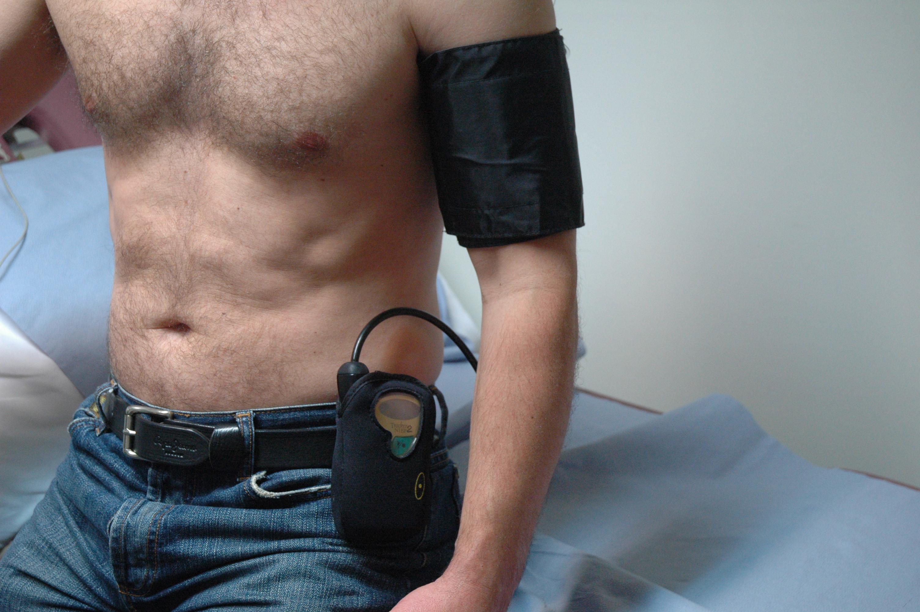 A-24-hour-blood-pressure-monitor2