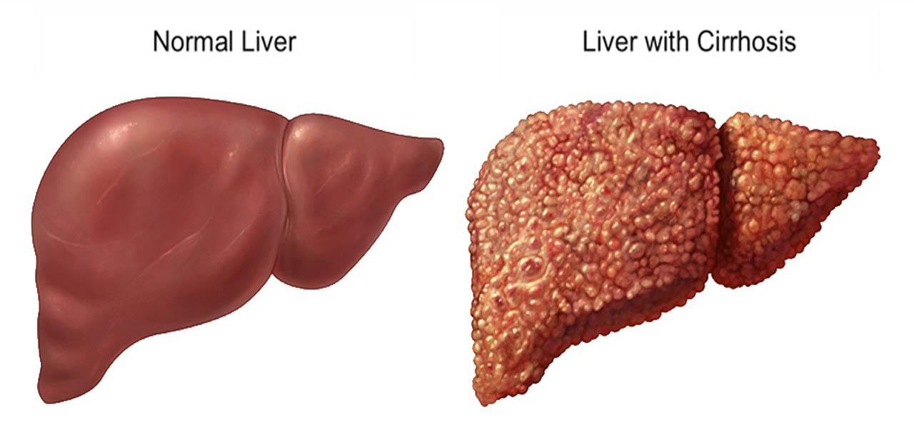 Hepatic-disease-liver-cirrhosis