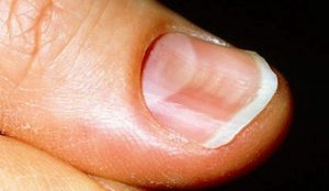 M1900072_spooned-nails_342x198