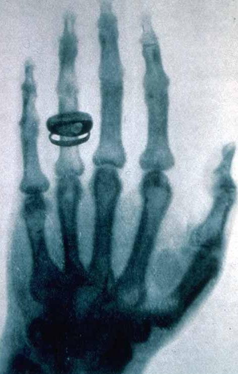 X-ray_by_Wilhelm_Röntgen_virtualdr.ir