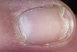 dermnet_photo_of_split_fingernail