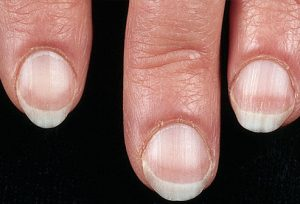mh_photo_of_pale_fingernails