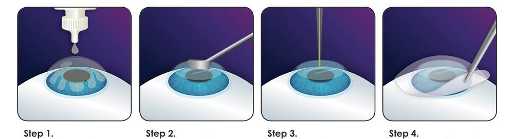 prk-procedure