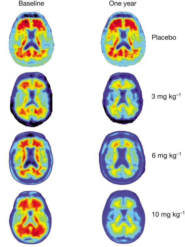 اسکنهای مغزی اثرات مصرف دوزهای مختلف دارو را پس از یک سال نشان میدهند