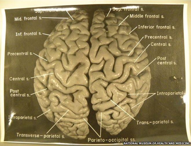 _82399975_fig01_brain_624