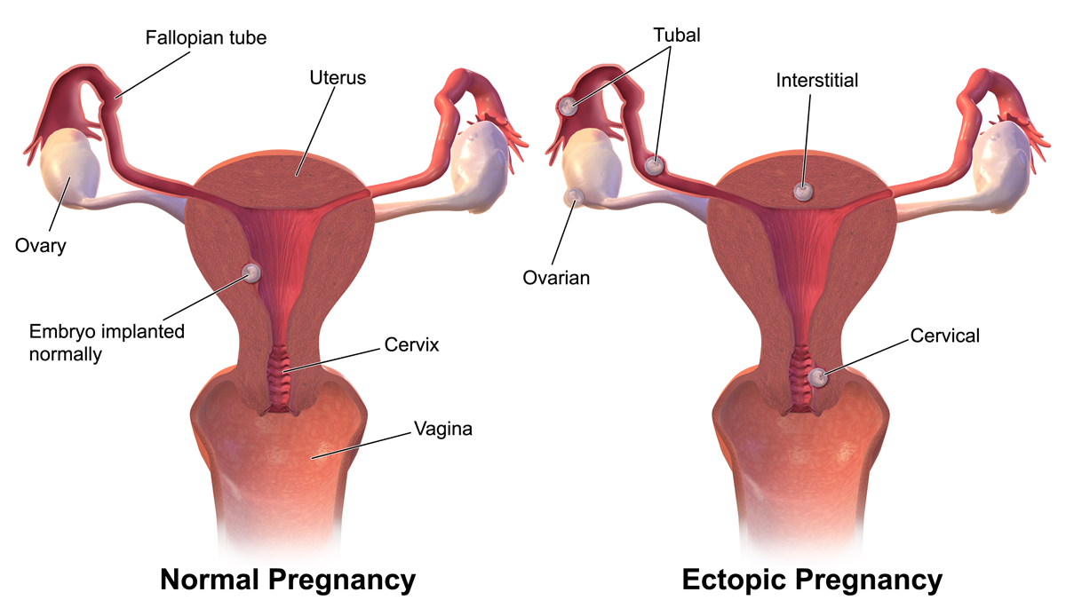 Ectopic_Pregnancy-virtualdr.ir