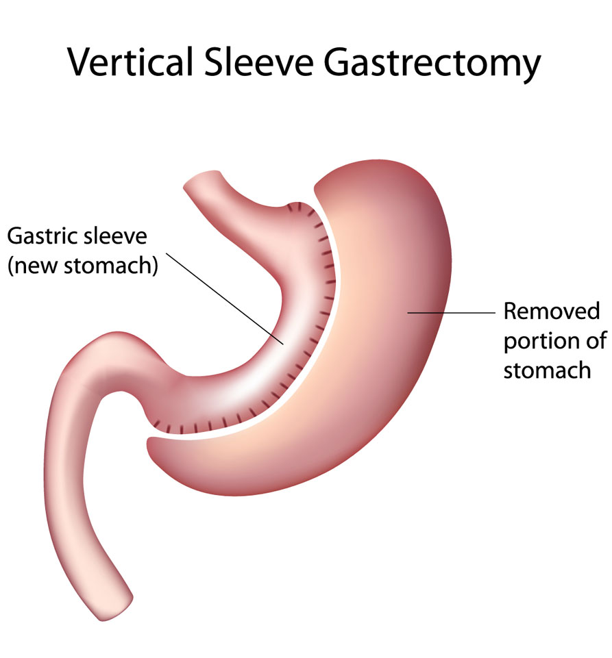 Gastric-Sleeve-Vertical-Sleeve-Gastrectomy-virtualdr.ir