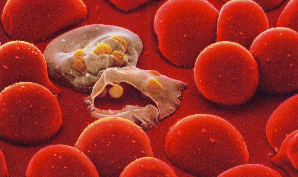 نمایی از ترکیدن دو گویچۀ قرمز خون در اثر آلوده شدن به پلاسمودیوم فالسیپاروم، انگل عامل مالاریا. اجسام زردرنگ پلاسمودیومهای آزاد شدهاند که در ادامه به سایر گویچهها یورش خواهند برد. البته هدف از این تصویر صرفا روشن سازی ترکیدن یک گلبول قرمز بود!