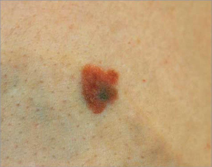 melanoma-under-tattoo-fig2-JAMA