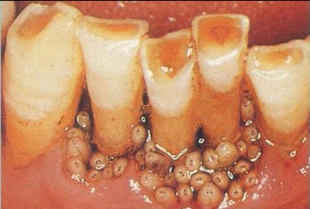 نمونهای از میاز دهانی. تصویر تزئینی بوده و متعلق به بیمار یادشده نیست!