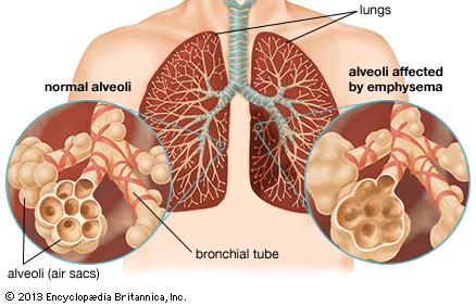 -emphysema virtualdr.ir