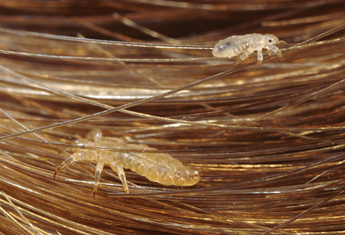493ss_getty_rm_photo_of_head_lice