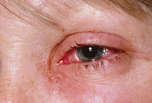 493ss_photo_researchers_rm_photo_of_adult_pink_eye