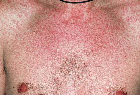 493ss_science_source_rm_photo_of_adult_measles
