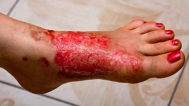 642x361_burns_types_treatments_third_degree_light_skin