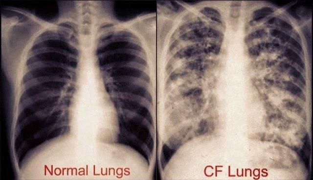 cystic-fibrosis-lungs-virtualdr-ir