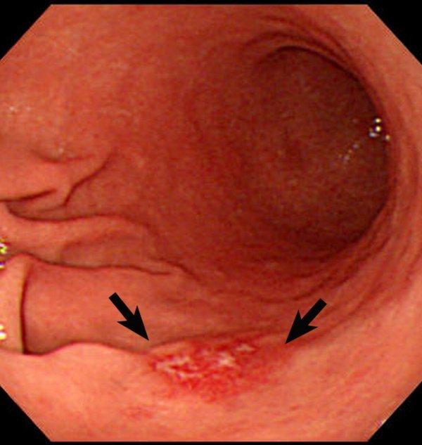 تومور سرطانی مشاهده شده با اندوسکوپی