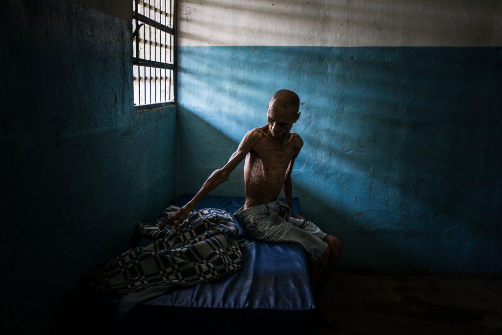 عمر مندوزا. بیمار روحی-روانی درگیر سوء تغذیه. © Meridith Kohut for The New York Times