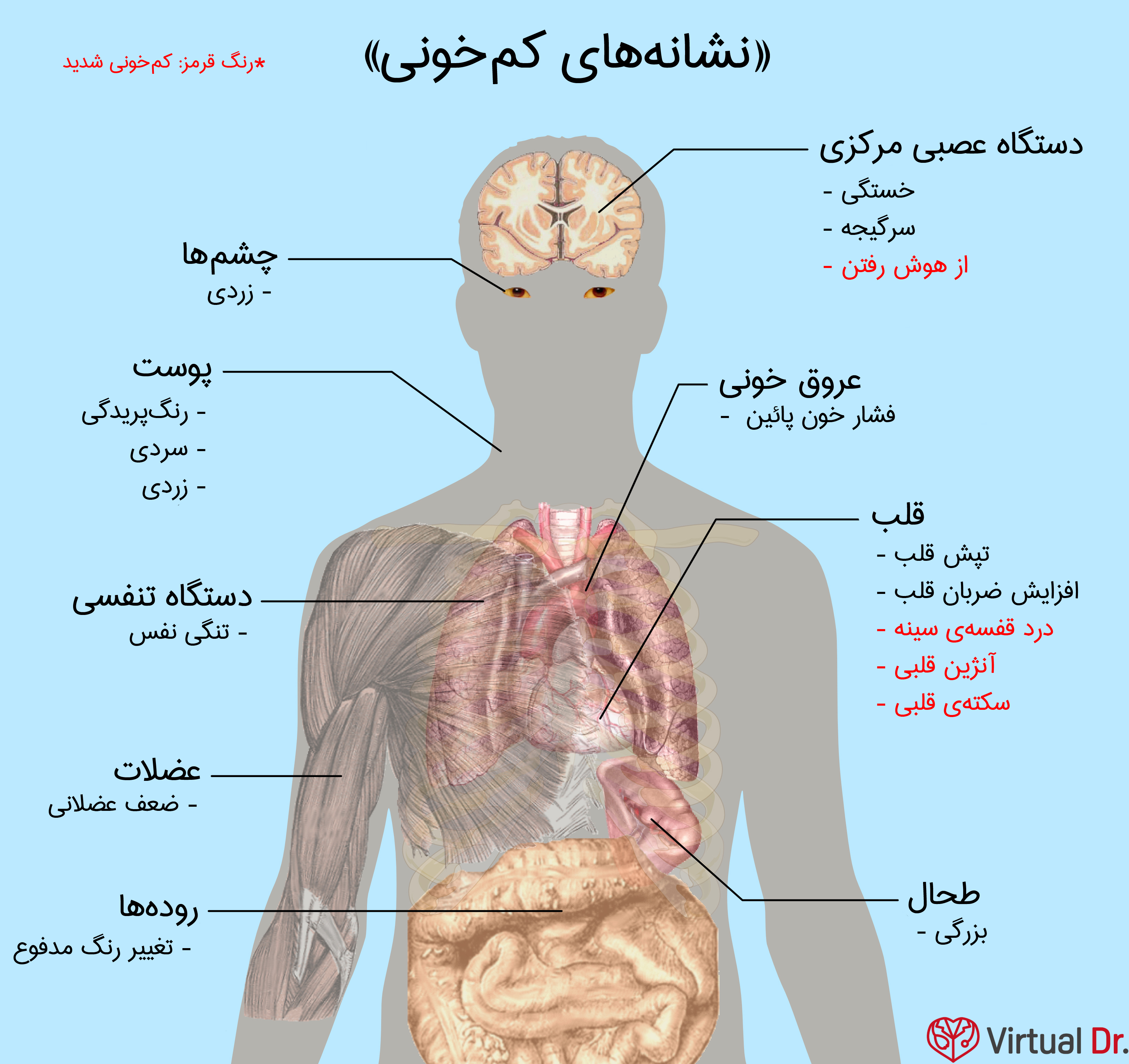anemia-infograph1-virtualdr