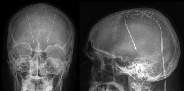 epilepsy-deep-brain-stimulation
