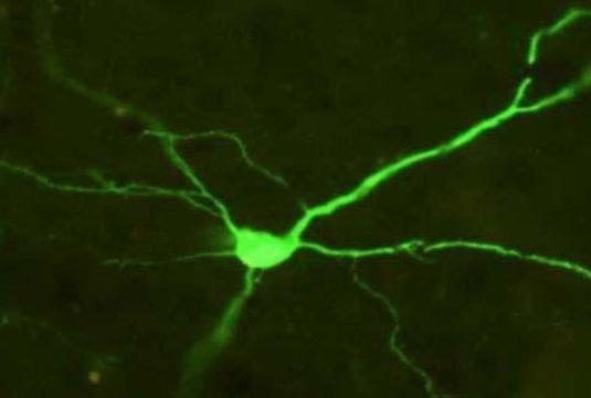 تصویر مربوط به نورونی از قشر مغز است که در حال بیان پروتئین گیرندهی سبز رنگی (با فلوئورسنت) میباشد. این مورد مربوط به بیان موفق گیرندهی DREADD است. (اعتبار تصویر متعلق به David J. Bucci، کالج کالج دارتموث میباشد.)
