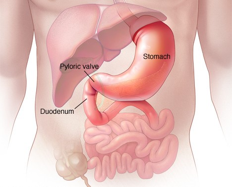 gastric-cancer-virtualdr-ir
