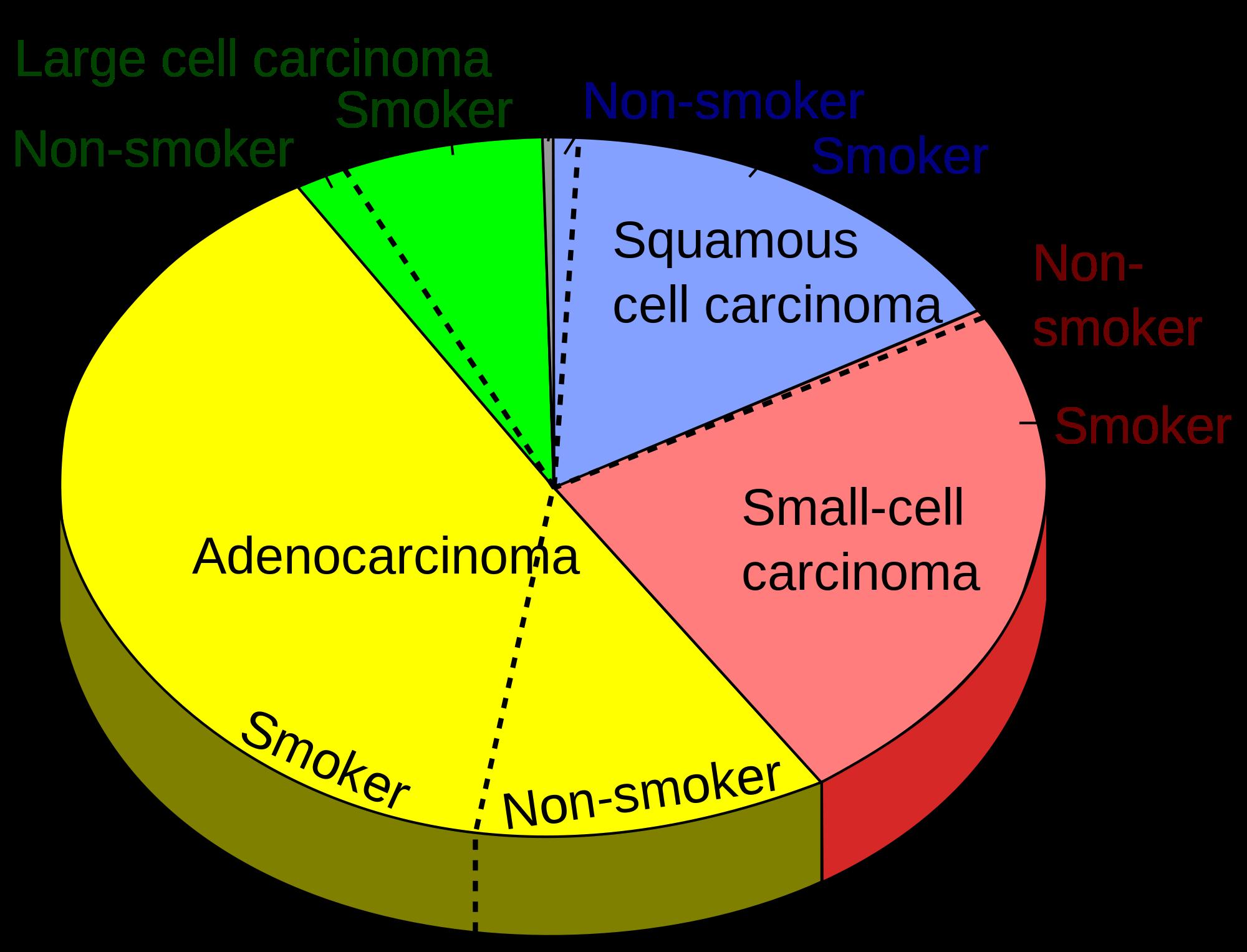 lung-cancer-diagram-virtualdr