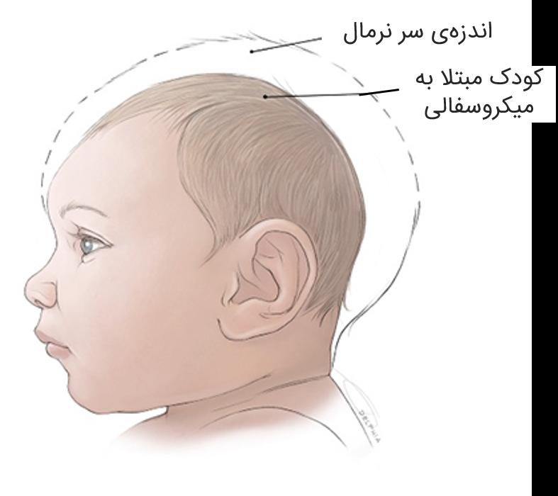 microcephaly-virtualdr-ir