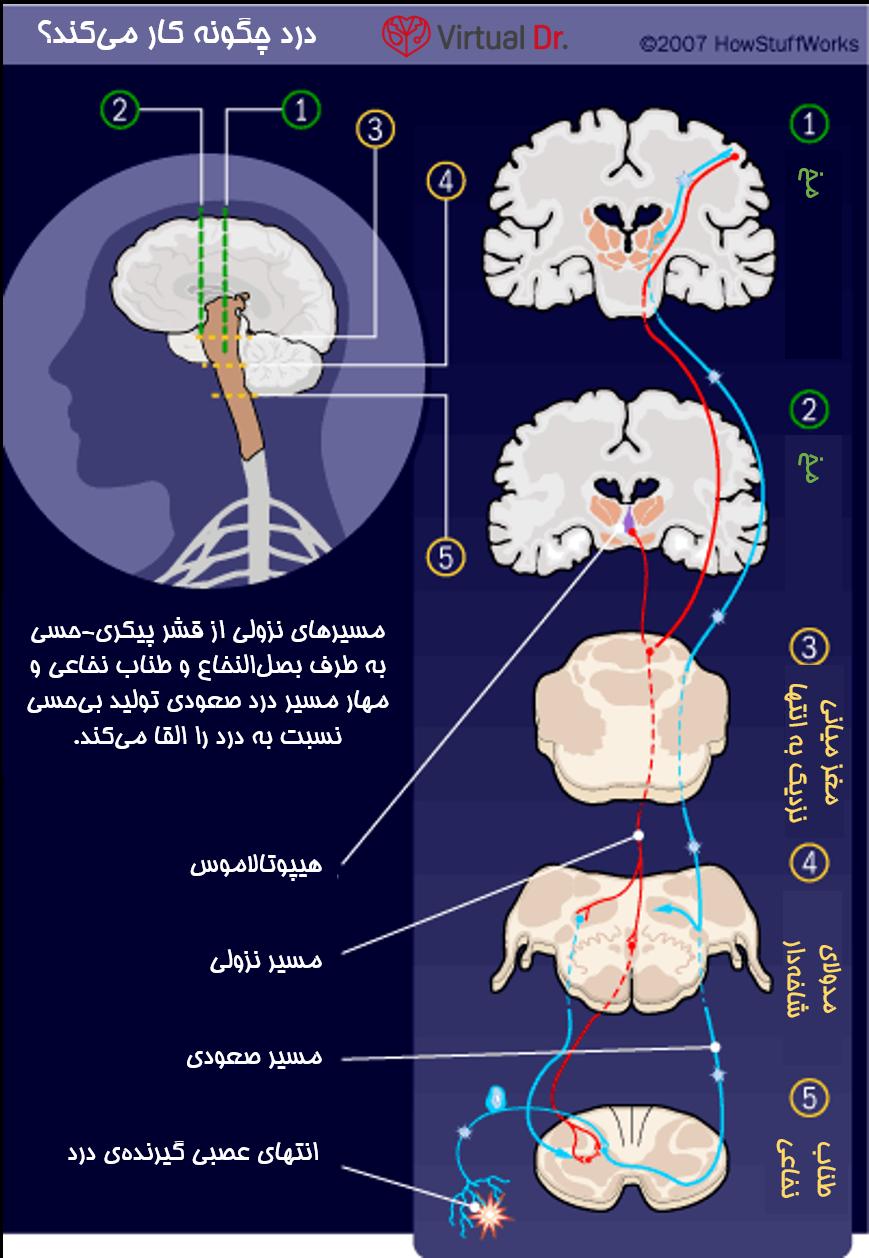 pain-relief-virtualdr-ir