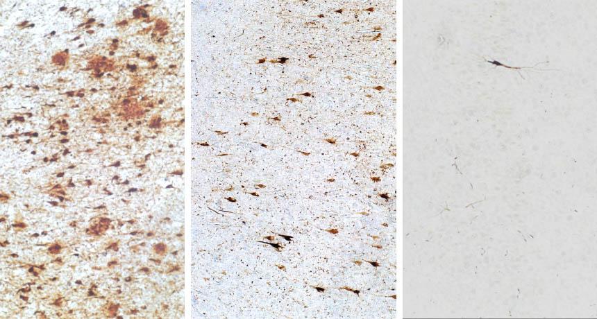 تصویری از بافت مغزی متعل به سه بیمار مبتلا به آلزایمر با ردههای پیشروی سلولی متفاوت. نمونۀ سمت چپ حاوی تعداد متنابهی از پلاکهای پروتئینی است. نمونۀ وسط در وضعیت متوسط قرار دارد. نمونۀ سمت راست نیز تقریباً سالم است.