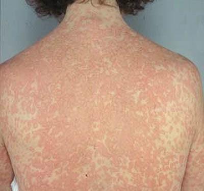 penicillin-allergy-virtualdr-ir