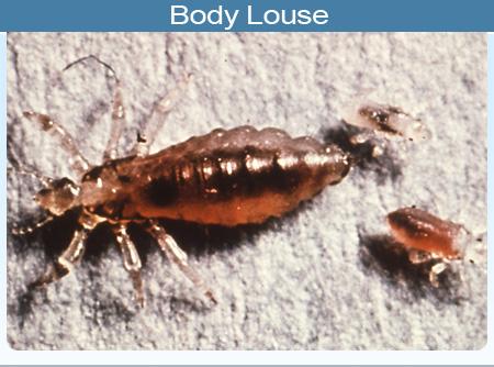 body-louse