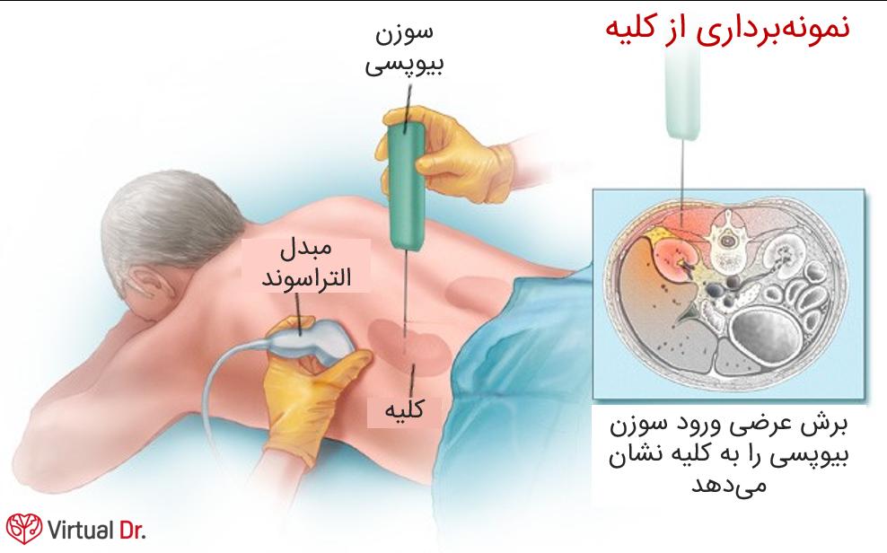 kidney-biopsy-virtualdr-ir