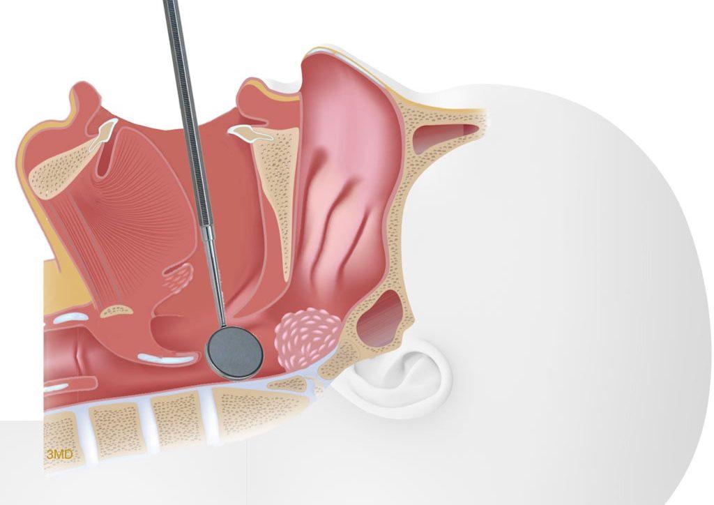 پزشک به کمک آینه قادر به بررسی وضعیت لوزههای حلقی میباشد