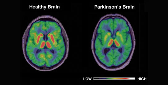 parkinson-brain-virtualdr