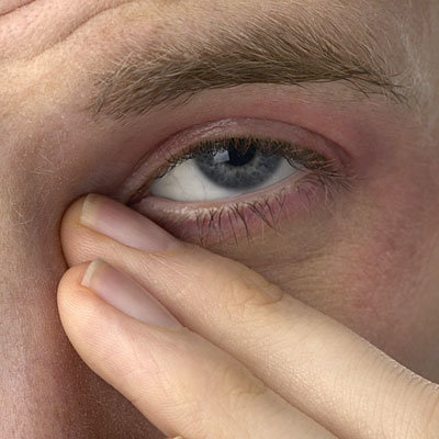 sinus-eyes-400x400-1