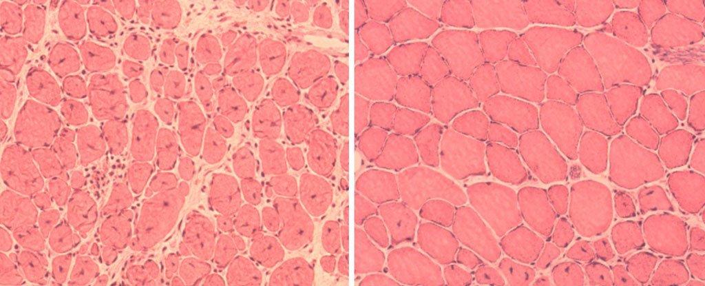 ترمیم ماهیچهای مختلشده در موش پیر (چپ) و درمانشده (راست) اعتبار تصویر متعلق به Juan Carlos Izpisua Belmonte Lab/Salk Institute میباشد.
