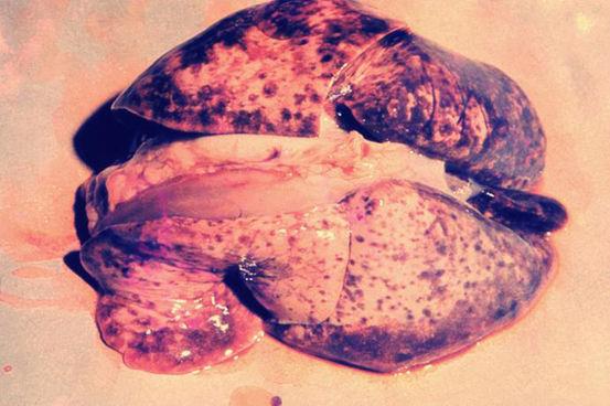 leptospira اعتبار تصویر متعلق به CDC است.