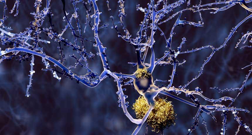 Plaque Buster داروی جدید آلزایمر قادر به پاکسازی پلاکهای بتا-آمیلوییدی از بافت مغزی میباشد. منبع: Science News
